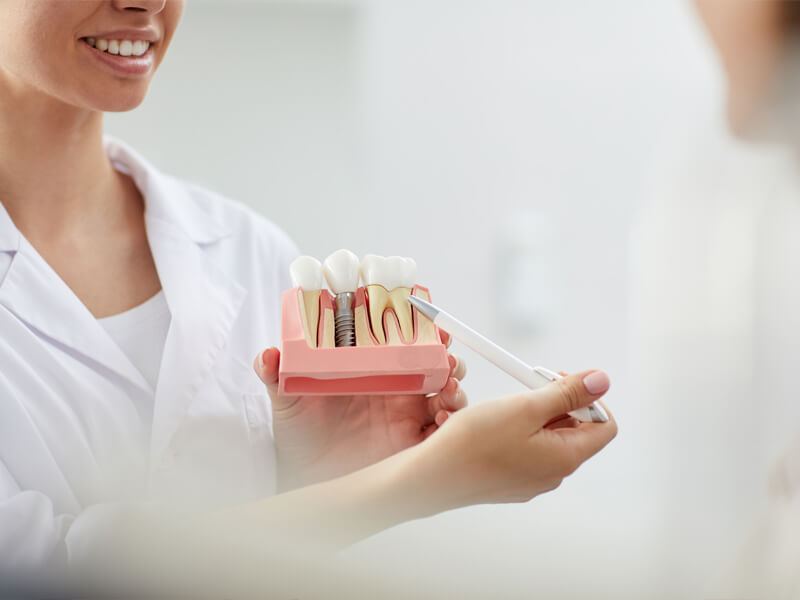 getting-all-on-6-dental-implants-is-better-for-you