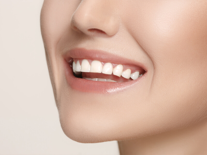 4-reasons-people-plan-a-cosmetic-dentistry-mexico-trip