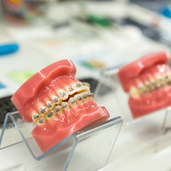 dcm-dental-braces-accesibility-and-options