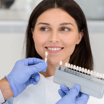 dcm-teeth-whitening-frequently-asked-questions